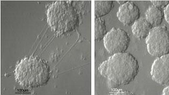 Fabrican células que producen insulina y curan la diabetes tipo 1 en ratones