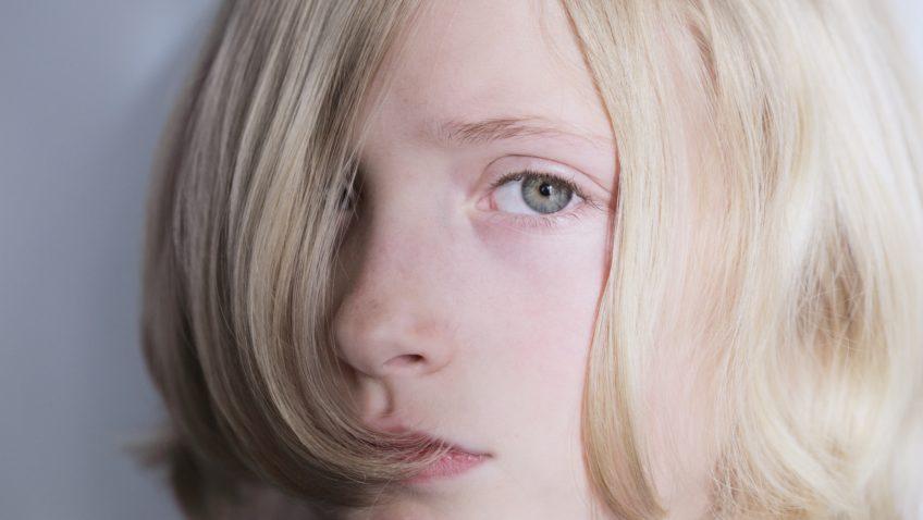 Diagnóstico de disforia de género: demasiado general y demasiado daño